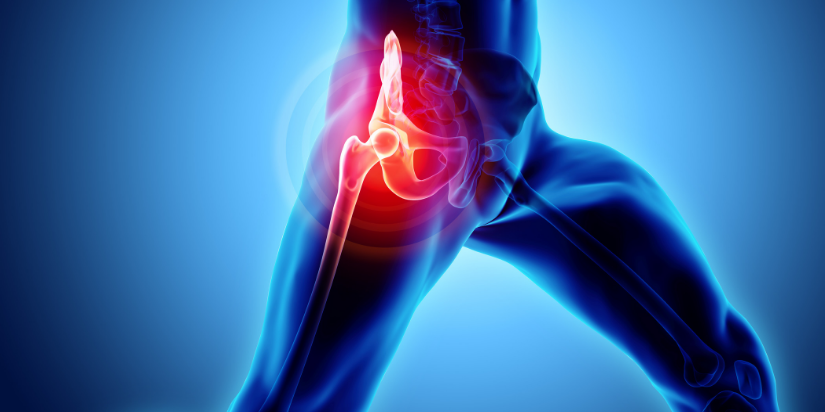 Artroplastica del ginocchio artrite reumatoide. Protesi al ginocchio
